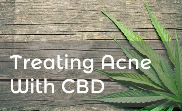 Treating acne with CBD banner.